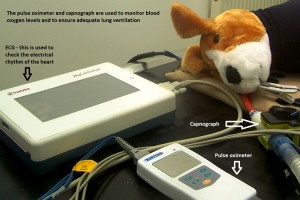Anaesthetic Monitoring